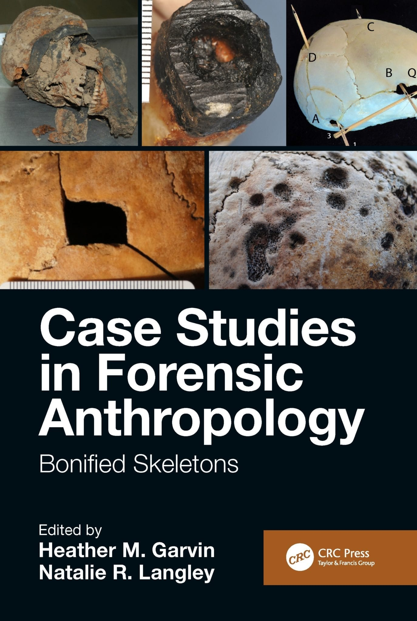 The Body In The Barrel And Other Mysteries New Book Shows Forensic Anthropology In Action News Des Moines University