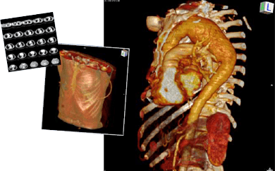 CT images of the thorax